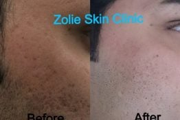 before and after results of laser hair treatment delhi skin clinic