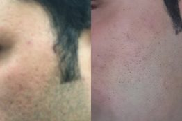 before and after photos of cosmetic dermatology treatment