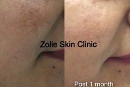 before and after pigmentation treatment at Zolie Skin Clinic