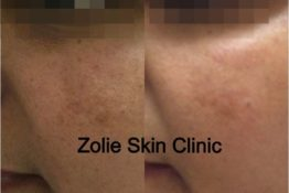 pigmentation treatment before & after photos