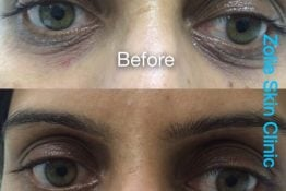 before and after undereye rejuvenation at Zolie Skin Clinic