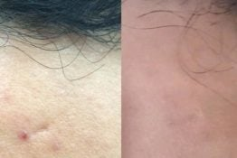 befor and after photos of chemical peel treatment