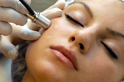 Microdermabrasion(MDA) Treatment