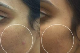 acne Scar treatment in delhi before after treatment