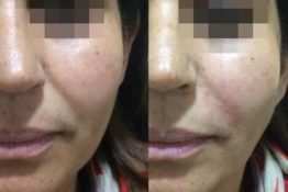 filler before & after pictures