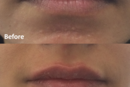 before & after lip filler photos