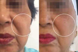 cheek filler before & after images