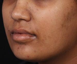 Pigmentation & Tanning Treatment