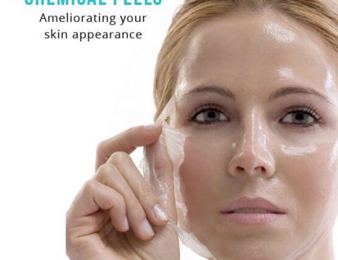 Chemical peels treatment