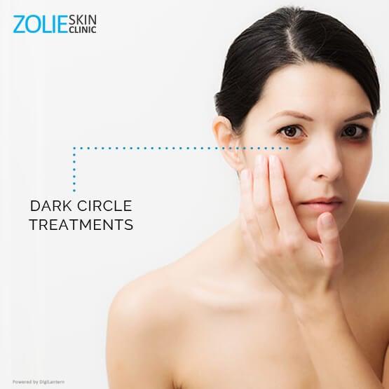 dark circle treatment