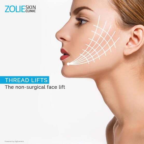 thread lifts non surgical face lift