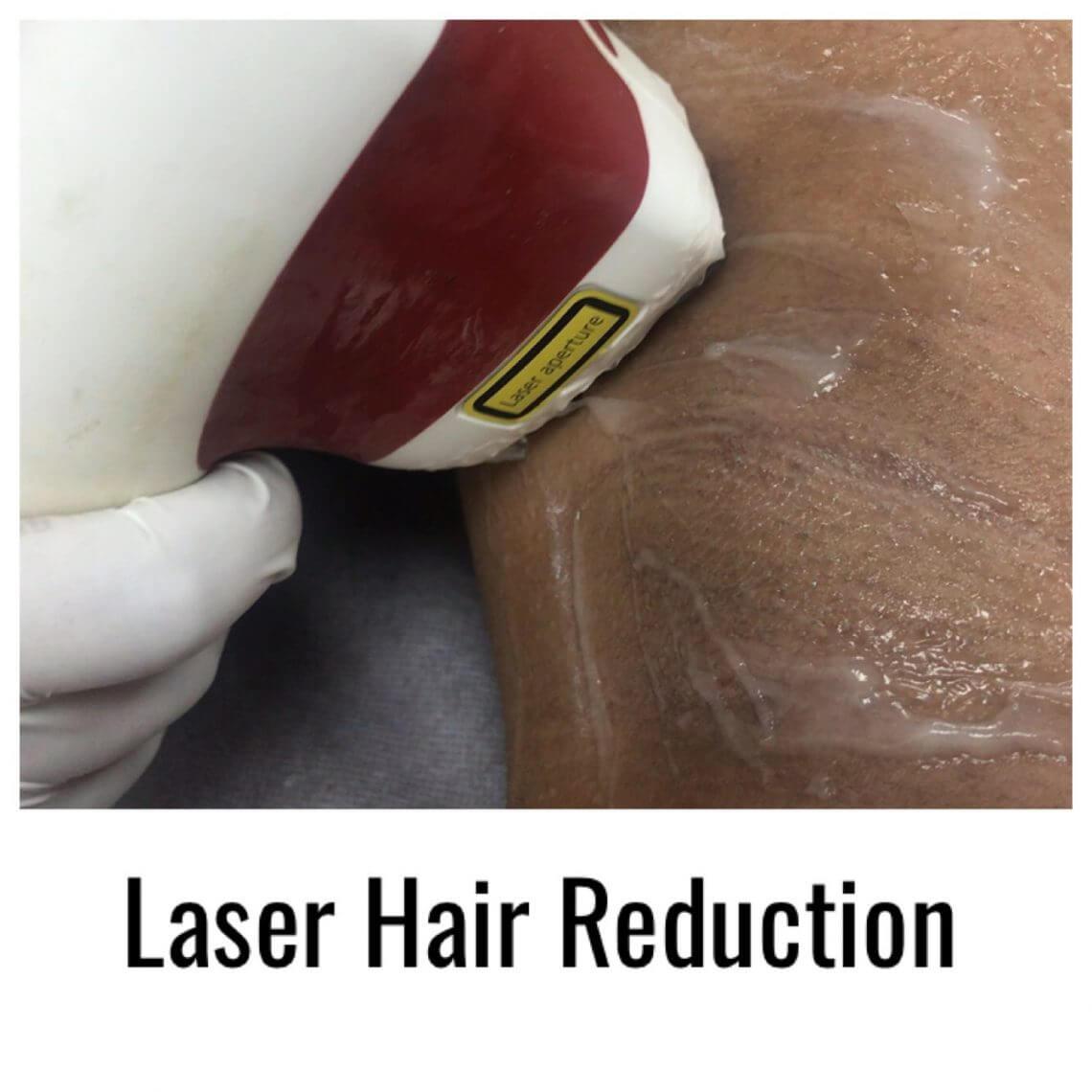 laser hair removal for men in Delhi