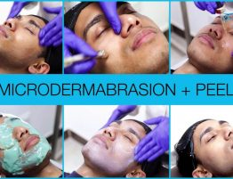 microdermabrasion and chemical peel treatment