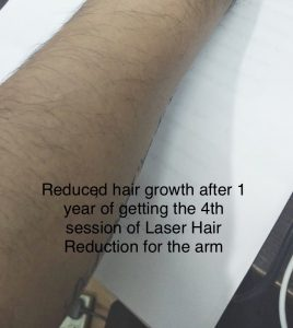 Laser-Hair-Reduction-hair-growth-after-one-year-ZolieSkinClinic