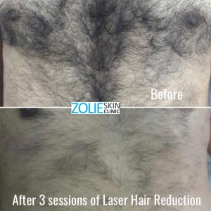 Hair-removal-treatment-before-after-Zolieskinclinic