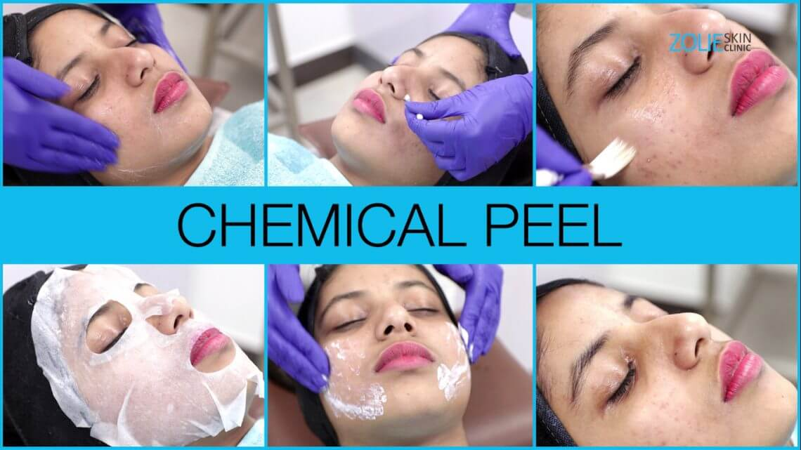 Chemical peel to reduce acne