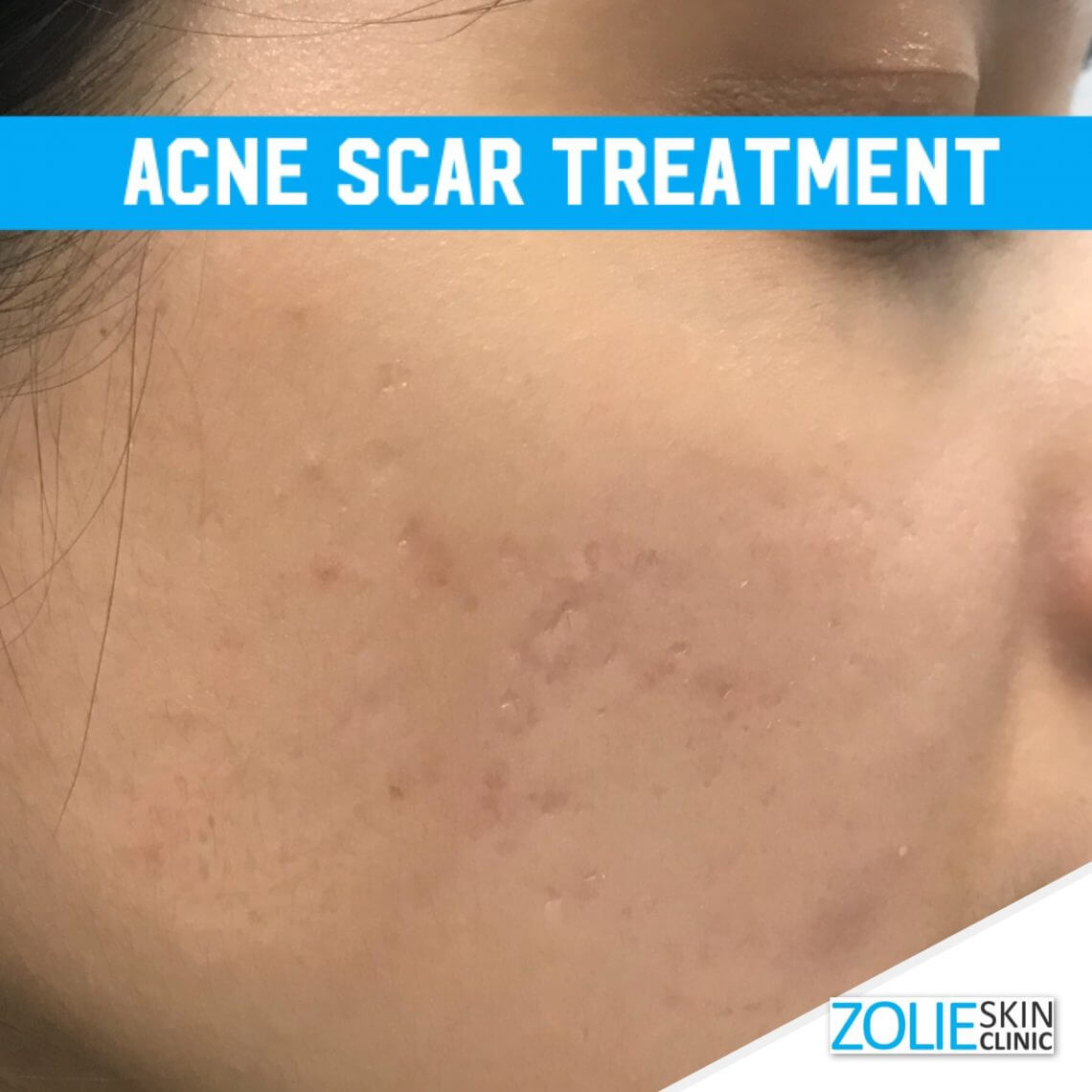 acne treatment without laser