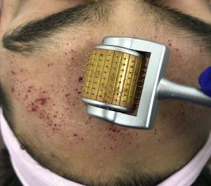 Micro-Needling-RF