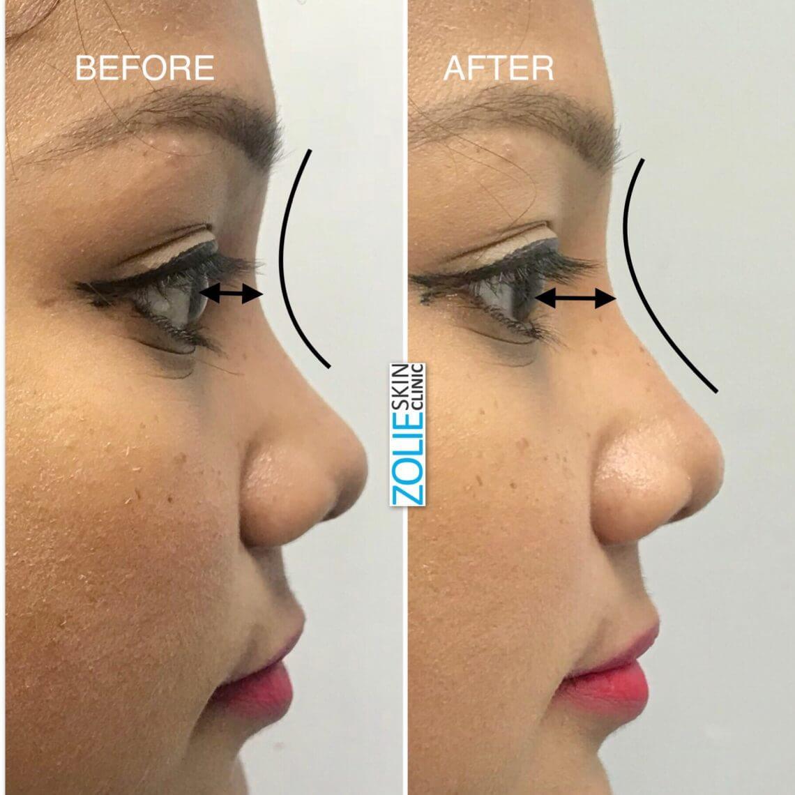 nose rhinoplasty in south delhi