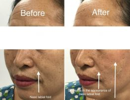 before and after photo of thread lift