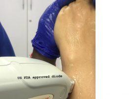 laser hair reduction in south delhi