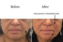 before and after photos of improvement in nasolabial folds