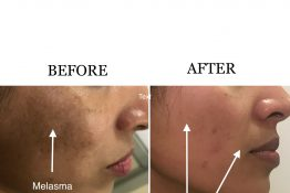 before and after acne treatment on face