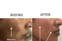 before and after photos of acne treatment
