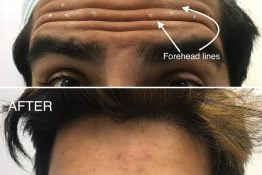 before and after photos of botox treatment on forehead wrinkles