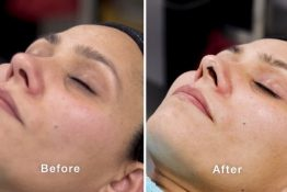 before and after photos of clinical facial