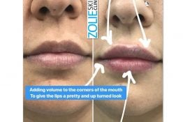 before and after photos of lip fillers
