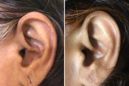 before and happy photos of earlobe repair