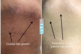 before and after photos of laser hair removal on chin