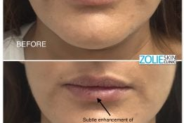 before and after photos of lip augmentation