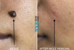 before and after photos of mole removal