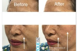 before and after photos of thread lift