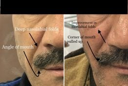 before and after photos of change in position of mouth and nose folds