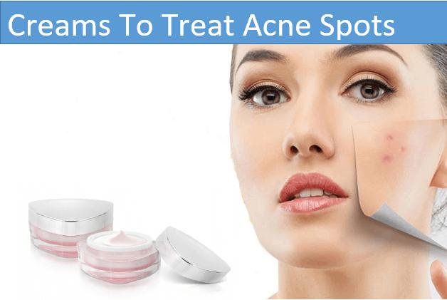 creams to treat acne spots