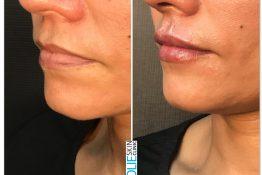 lip filler treatment at zolie skin clinic