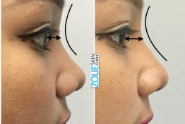 nose job rhinoplasty at zolie skin clinic