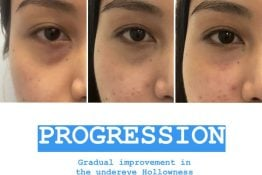 progression in improvement due to dermal fillers