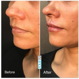 before and after dermal filler treatment female patient