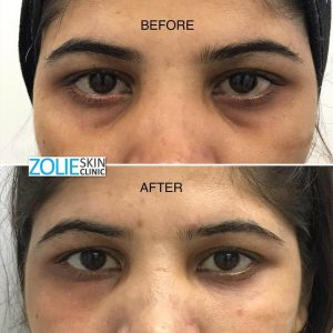 before and after dermal filler treatment forehead lines female patient