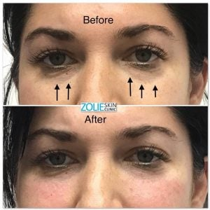 before and after dermal filler treatment undereye area