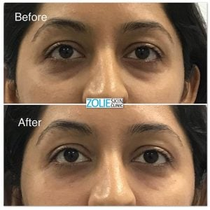 improvement in undereye area before and after using dermal fillers