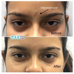 scar treatment using dermal fillers
