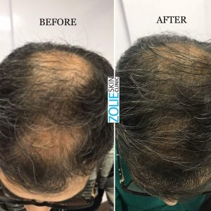 before and after photos of PRP treatment