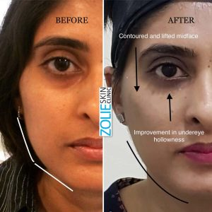 before and after results of dermal filler undereye hollowness